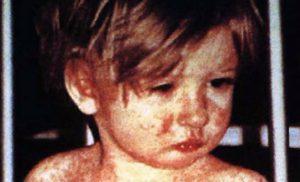 Rujeola NU este o banala boala a copilariei